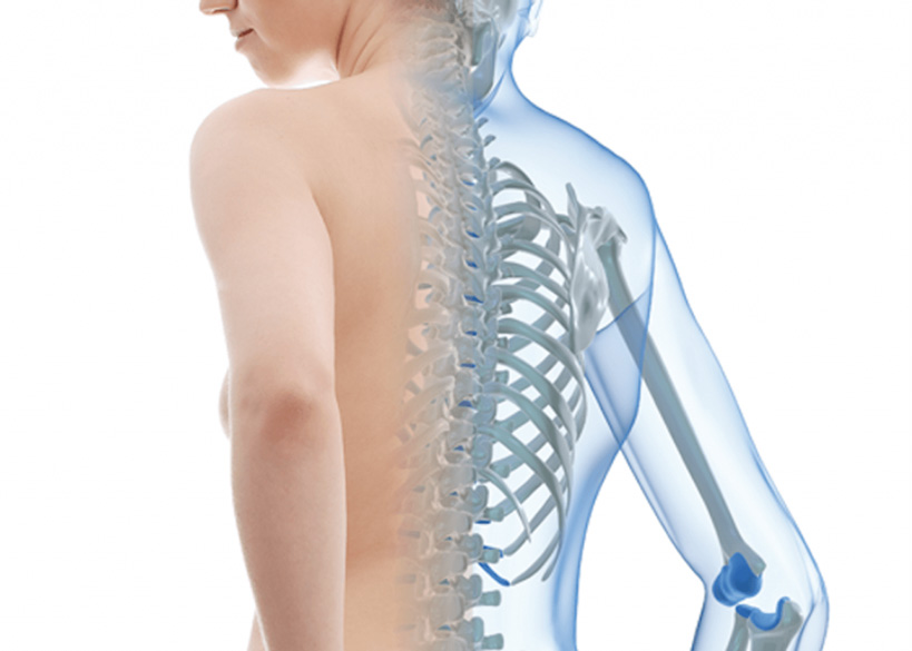 Osteoporosis - Calcibone