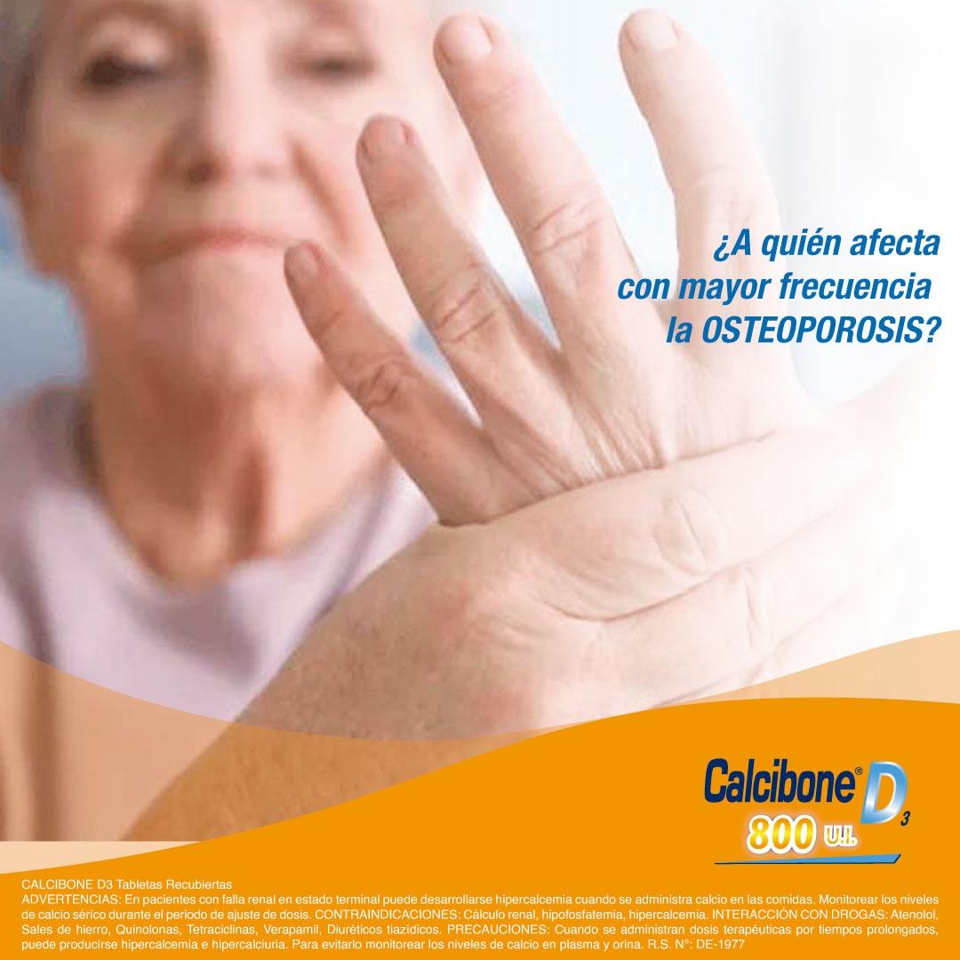 A quien afecta con mayor frecuencia la Osteoporosis - Calcibone D